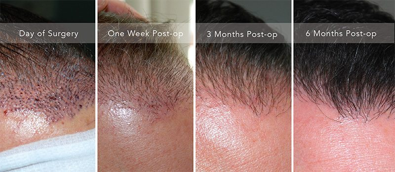 Hair Transplant Surgery Northwest Hair Restoration Dr Niedbalski